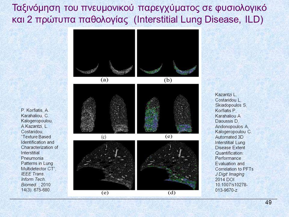 Ταξινόμηση του πνευμονικού παρεγχύματος σε φυσιολογικό και 2 πρώτυπα παθολογίας (Interstitial Lung Disease, ILD) P.