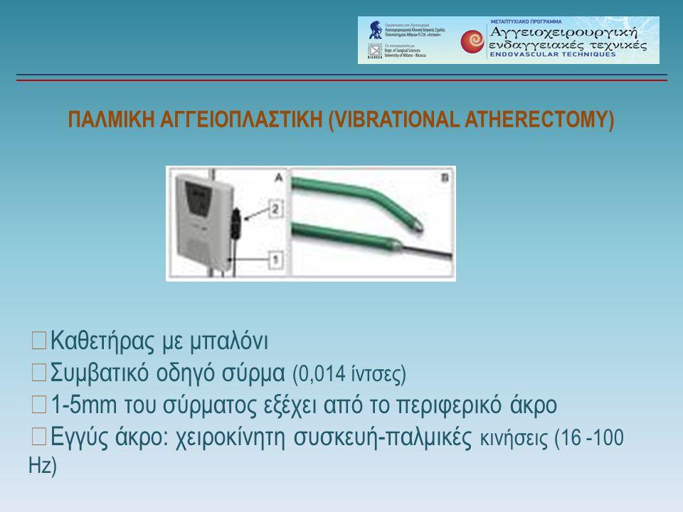 ΠΑΛΜΙΚΗ ΑΓΓΕΙΟΠΛΑΣΤΙΚΗ (VIBRATIONAL ATHERECTOMY) ▶ Καθετήρας με μπαλόνι ▶ Συμβατικό οδηγό σύρμα (0,014 ίντσες) ▶ 1-5mm του σύρματος εξέχει από το περι