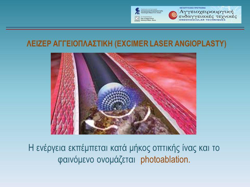 ΛΕΙΖΕΡ ΑΓΓΕΙΟΠΛΑΣΤΙΚΗ (EXCIMER LASER ANGIOPLASTY) Η ενέργεια εκπέμπεται κατά μήκος οπτικής ίνας και το φαινόμενο ονομάζεται photoablation.