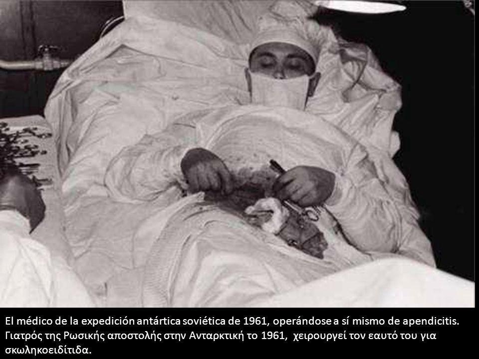 El médico de la expedición antártica soviética de 1961, operándose a sí mismo de apendicitis. Γιατρός της Ρωσικής αποστολής στην Ανταρκτική το 1961, χ