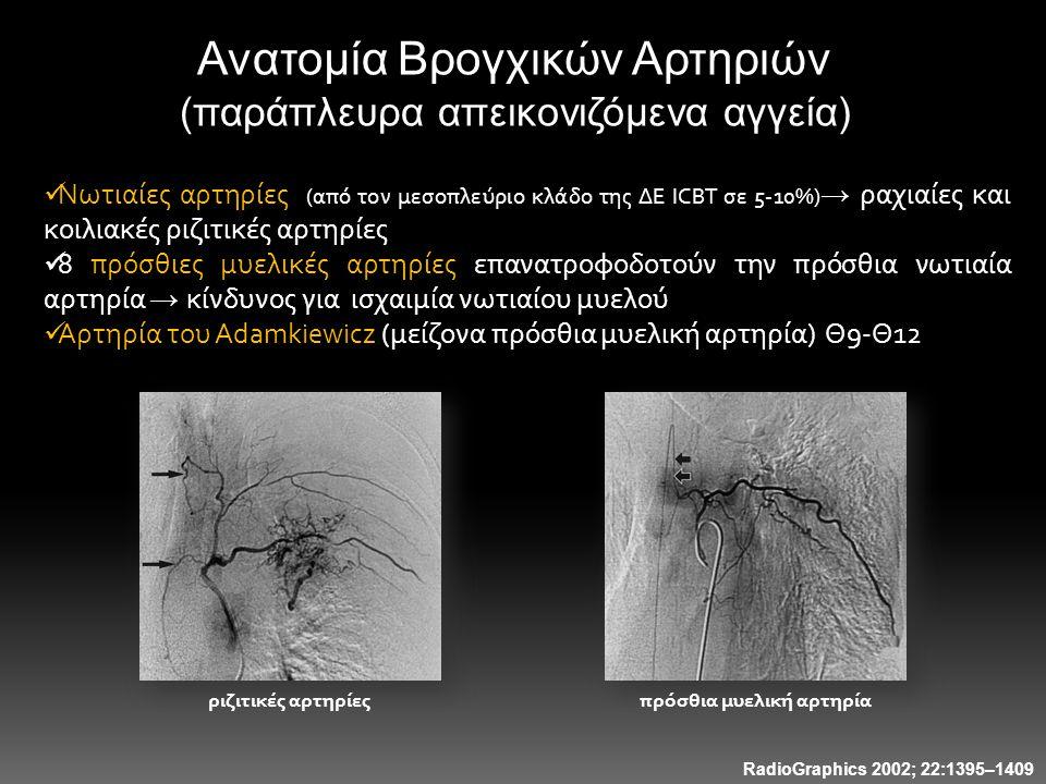 Ανατομία Βρογχικών Αρτηριών (παράπλευρα απεικονιζόμενα αγγεία)  Νωτιαίες αρτηρίες (από τον μεσοπλεύριο κλάδο της ΔΕ ICBT σε 5-10%) → ραχιαίες και κοι