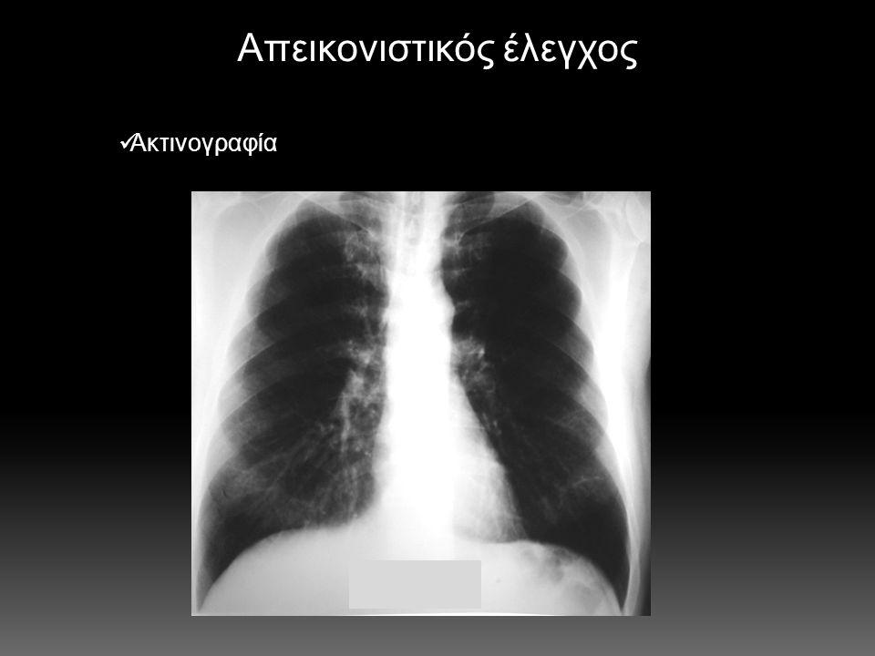 Αίτια αιμόπτυσης  Καρκίνος βρογχογενής (35%)  Αγγειακής αιτιολογίας  φλεβική υπέρταση, αγγειίτιδες, αρτηριοφλεβώδεις επικοινωνίες, ρήξη ανευρύσματος πνευμονικής αρτηρίας  Λοιμώξεις  βρογχεκτασίες (15%), χρόνια βρογχίτιδα, TB, ασπεργίλλωση, κυστική ίνωση  Τραυματισμός τοιχώματος βρόγχων