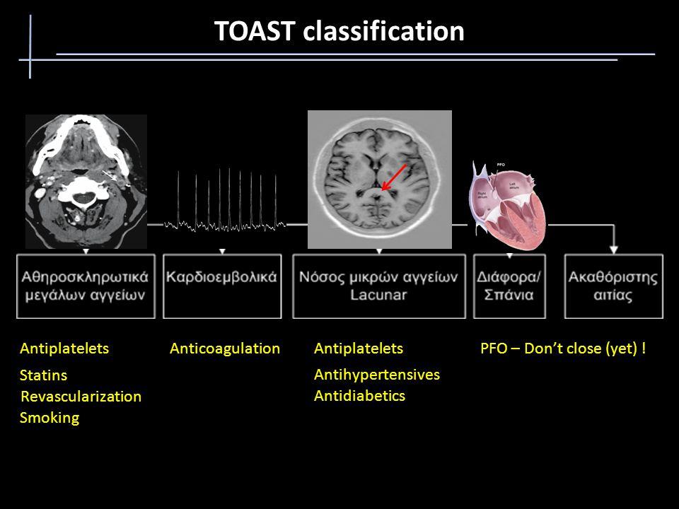 TOAST classification Antiplatelets Statins Revascularization Smoking AnticoagulationAntiplatelets Antihypertensives PFO – Don't close (yet) .