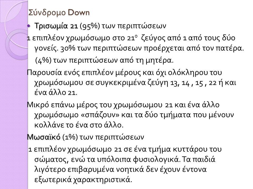Σύνδρομο Down  Τρισωμία 21  Τρισωμία 21 (95%) των περιπτώσεων 1 επιπλέον χρωμόσωμο στο 21 ο ζεύγος από 1 από τους δύο γονείς. 30% των περιπτώσεων πρ