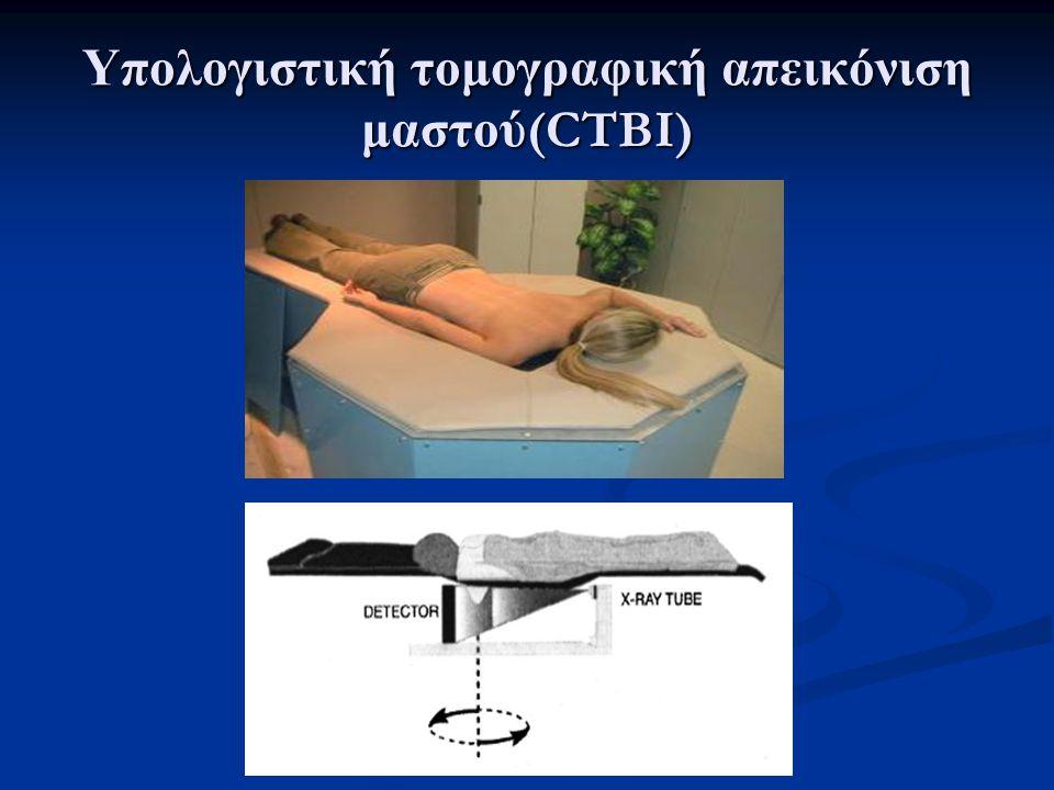  Εγκάρσια απεικόνιση «λογισμικού» ομοιώματος μαστού με υλικό «βάσης» αποτελούμενο κατα 50% αδένες και 50% λίπος (αριστερά)  A: Αδένας (σειρά Α, 0.5, 1, 2, 4 και 8 mm απο αριστερά προς δεξιά), B: Καρκίνωμα (σειρά Β, 1, 2, 2.5, 4 και 8 mm) και C: αποτιτανώσεις (σειρά C, 1.5, 2, 2.5 και 3 mm).