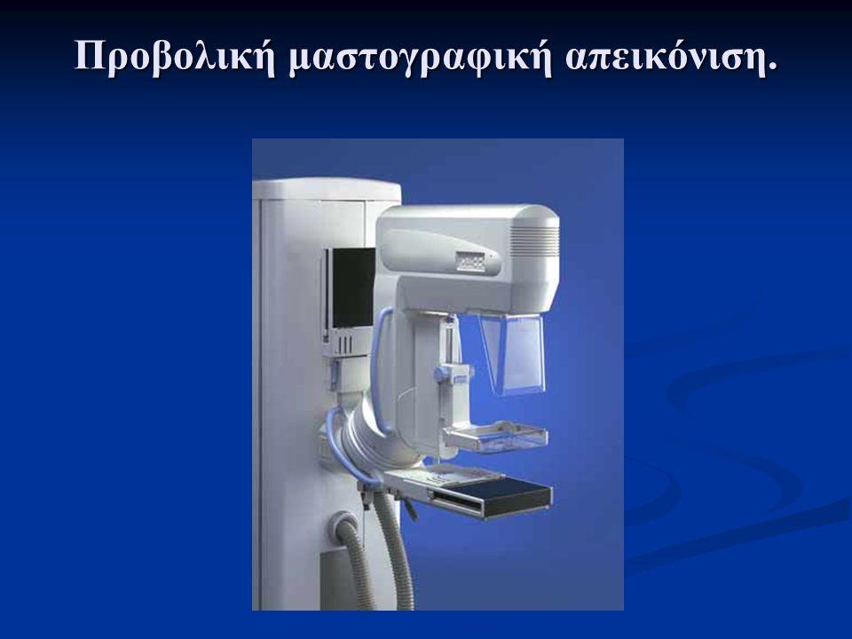 Εισαγωγή Σε προηγούμενες μελέτες: Σε προηγούμενες μελέτες:  Θεωρείται παρουσία ιδανικού ανιχνευτή σπινθηρισμών σε μαστογραφικό σύστημα.