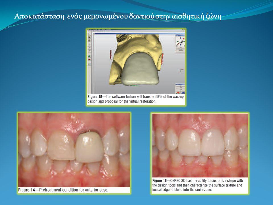 Αποκατάσταση ενός μεμονωμένου δοντιού στην αισθητική ζώνη