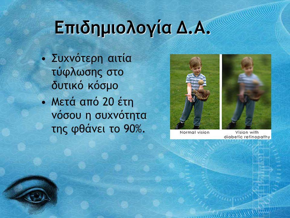 Επιδημιολογία Δ.Α. •Συχνότερη αιτία τύφλωσης στο δυτικό κόσμο •Μετά από 20 έτη νόσου η συχνότητα της φθάνει το 90%.