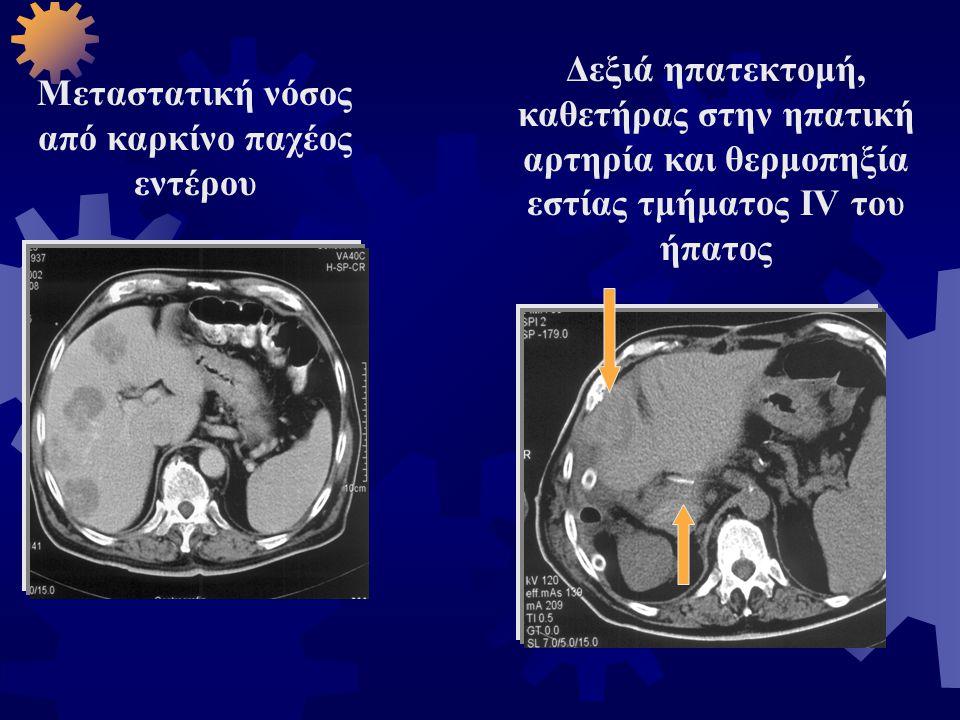 Μεταστατική νόσος από καρκίνο παχέος εντέρου Δεξιά ηπατεκτομή, καθετήρας στην ηπατική αρτηρία και θερμοπηξία εστίας τμήματος IV του ήπατος