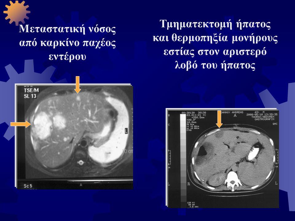 Μεταστατική νόσος από καρκίνο παχέος εντέρου Τμηματεκτομή ήπατος και θερμοπηξία μονήρους εστίας στον αριστερό λοβό του ήπατος