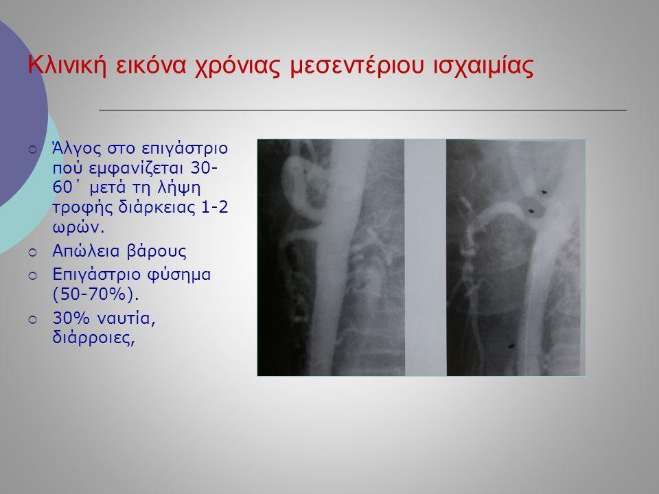 Κλινική εικόνα χρόνιας μεσεντέριου ισχαιμίας  Άλγος στο επιγάστριο πού εμφανίζεται 30- 60΄ μετά τη λήψη τροφής διάρκειας 1-2 ωρών.