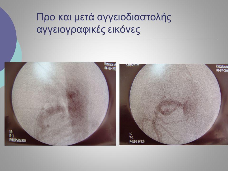 Προ και μετά αγγειοδιαστολής αγγειογραφικές εικόνες