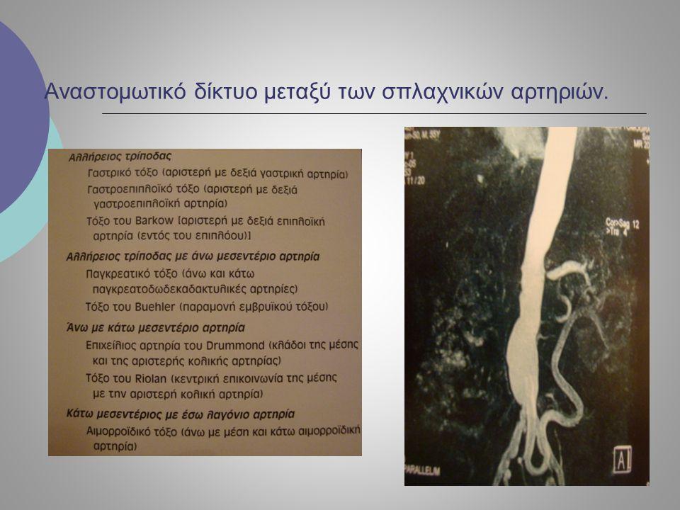 ΘΕΡΑΠΕΙΑ ΧΜΙ  Ενδαρτηρεκτομή κοιλιακής αορτής  Ορθόδρομη ή ανάδρομη αορτομεσεντέριος παράκαμψη.