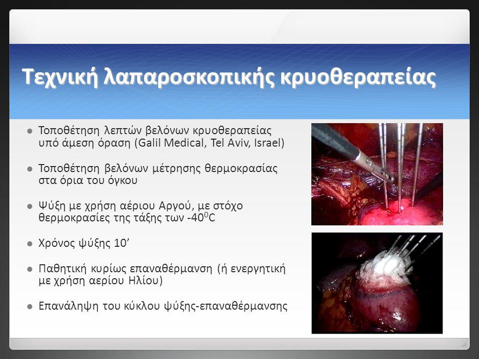 Τεχνική λαπαροσκοπικής κρυοθεραπείας   Τοποθέτηση λεπτών βελόνων κρυοθεραπείας υπό άμεση όραση (Galil Medical, Tel Aviv, Israel)   Τοποθέτηση βελόνων μέτρησης θερμοκρασίας στα όρια του όγκου   Ψύξη με χρήση αέριου Αργού, με στόχο θερμοκρασίες της τάξης των -40 0 C   Χρόνος ψύξης 10'   Παθητική κυρίως επαναθέρμανση (ή ενεργητική με χρήση αερίου Ηλίου)   Επανάληψη του κύκλου ψύξης-επαναθέρμανσης