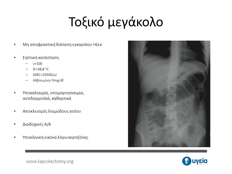 www.lapcolectomy.org Τοξικό μεγάκολο • Μη αποφρακτική διάταση εγκαρσίου >6εκ • Σηπτική κατάσταση – ν>100 – Θ>38,8 o C – WBC>10500/μl – Αλβουμίνη<3mg/d