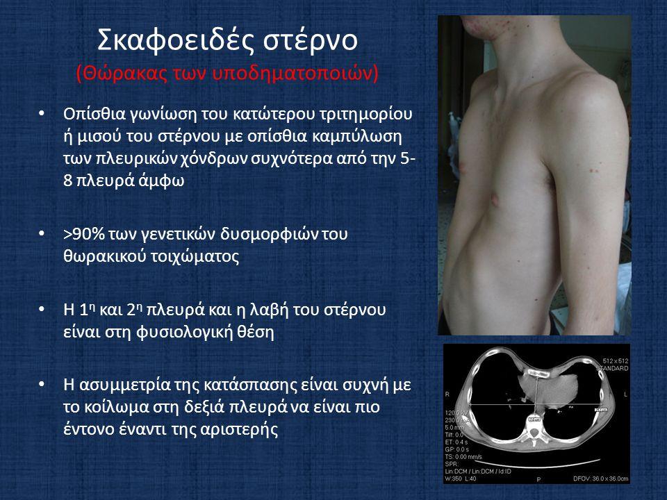 Σκαφοειδές στέρνο (Θώρακας των υποδηματοποιών) • Οπίσθια γωνίωση του κατώτερου τριτημορίου ή μισού του στέρνου με οπίσθια καμπύλωση των πλευρικών χόνδρων συχνότερα από την 5- 8 πλευρά άμφω • >90% των γενετικών δυσμορφιών του θωρακικού τοιχώματος • Η 1 η και 2 η πλευρά και η λαβή του στέρνου είναι στη φυσιολογική θέση • Η ασυμμετρία της κατάσπασης είναι συχνή με το κοίλωμα στη δεξιά πλευρά να είναι πιο έντονο έναντι της αριστερής