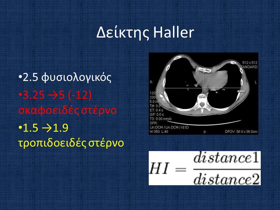 Δείκτης Haller • 2.5 φυσιολογικός • 3.25 →5 (-12) σκαφοειδές στέρνο • 1.5 →1.9 τροπιδοειδές στέρνο
