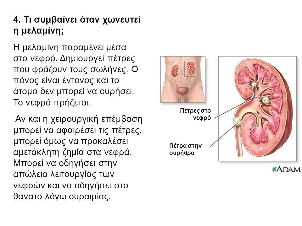 4. Τι συμβαίνει όταν χωνευτεί η μελαμίνη; Η μελαμίνη παραμένει μέσα στο νεφρό. Δημιουργεί πέτρες που φράζουν τους σωλήνες. Ο πόνος είναι έντονος και τ