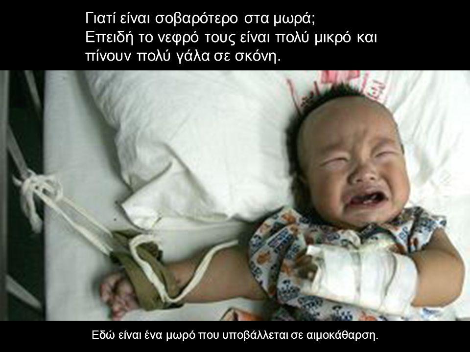 Γιατί είναι σοβαρότερο στα μωρά; Επειδή το νεφρό τους είναι πολύ μικρό και πίνουν πολύ γάλα σε σκόνη. Εδώ είναι ένα μωρό που υποβάλλεται σε αιμοκάθαρσ