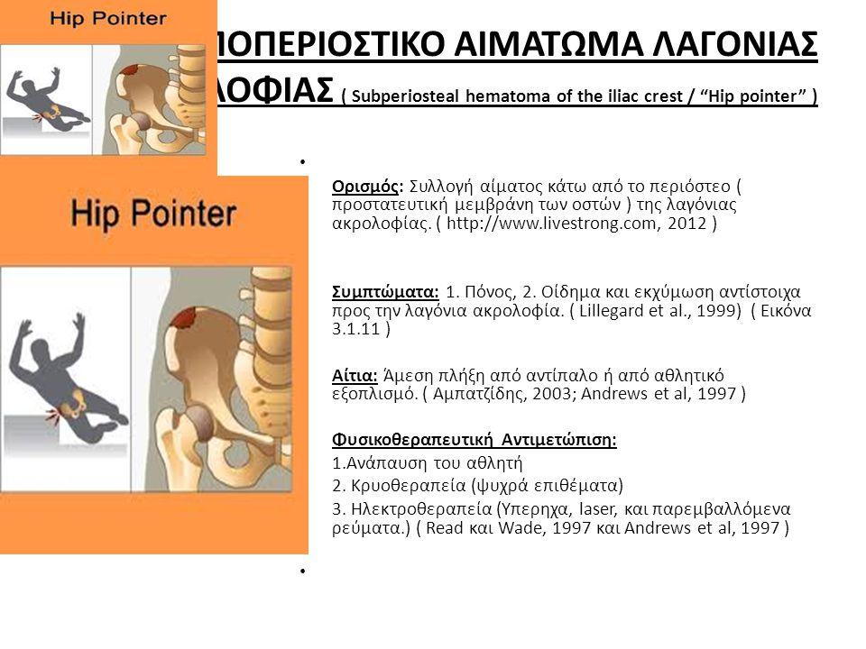 ΥΠΟΠΕΡΙΟΣΤΙΚΟ ΑΙΜΑΤΩΜΑ ΛΑΓΟΝΙΑΣ ΑΚΡΟΛΟΦΙΑΣ ( Subperiosteal hematoma of the iliac crest / Hip pointer ) • • Ορισμός: Συλλογή αίματος κάτω από το περιόστεο ( προστατευτική μεμβράνη των οστών ) της λαγόνιας ακρολοφίας.