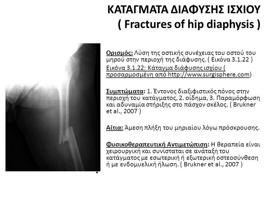 ΚΑΤΑΓΜΑΤΑ ΔΙΑΦΥΣΗΣ ΙΣΧΙΟΥ ( Fractures of hip diaphysis ) • Ορισμός: Λύση της οστικής συνέχειας του οστού του μηρού στην περιοχή της διάφυσης.