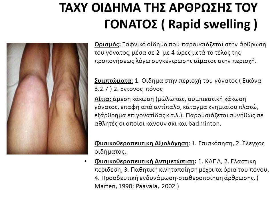 ΤΑΧΥ ΟΙΔΗΜΑ ΤΗΣ ΑΡΘΡΩΣΗΣ ΤΟΥ ΓΟΝΑΤΟΣ ( Rapid swelling ) • Ορισμός: Ξαφνικό οίδημα που παρουσιάζεται στην άρθρωση του γόνατος, μέσα σε 2 με 4 ώρες μετά το τέλος της προπονήσεως λόγω συγκέντρωσης αίματος στην περιοχή.