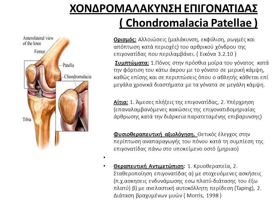 ΧΟΝΔΡΟΜΑΛΑΚΥΝΣΗ ΕΠΙΓΟΝΑΤΙΔΑΣ ( Chondromalacia Patellae ) • Ορισμός: Αλλοιώσεις (μαλάκυνση, εκφύλιση, ρωγμές και απόπτωση κατά περιοχές) του αρθρικού χόνδρου της επιγονατίδας που περιλαμβάνει.