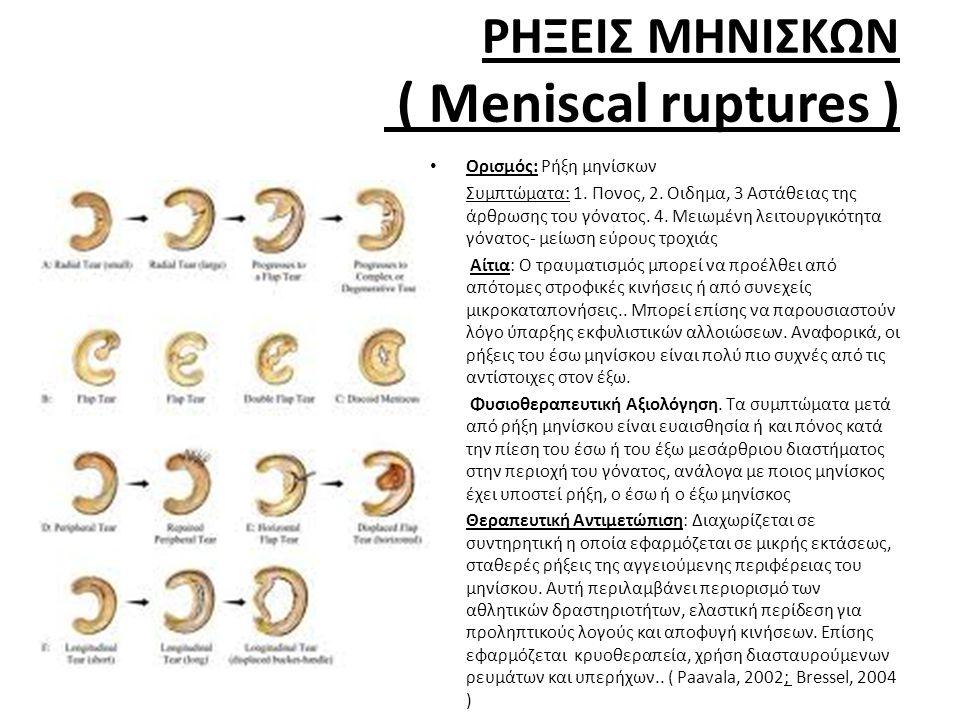 ΡΗΞΕΙΣ ΜΗΝΙΣΚΩΝ ( Meniscal ruptures ) • Ορισμός: Ρήξη μηνίσκων • Συμπτώματα: 1.