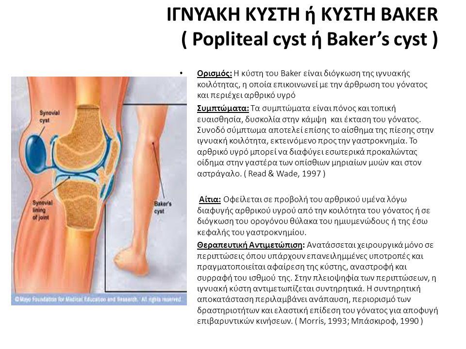 ΙΓΝΥΑΚΗ ΚΥΣΤΗ ή ΚΥΣΤΗ BAKER ( Popliteal cyst ή Baker's cyst ) • Ορισμός: Η κύστη του Baker είναι διόγκωση της ιγνυακής κοιλότητας, η οποία επικοινωνεί με την άρθρωση του γόνατος και περιέχει αρθρικό υγρό • Συμπτώματα: Τα συμπτώματα είναι πόνος και τοπική ευαισθησία, δυσκολία στην κάμψη και έκταση του γόνατος.