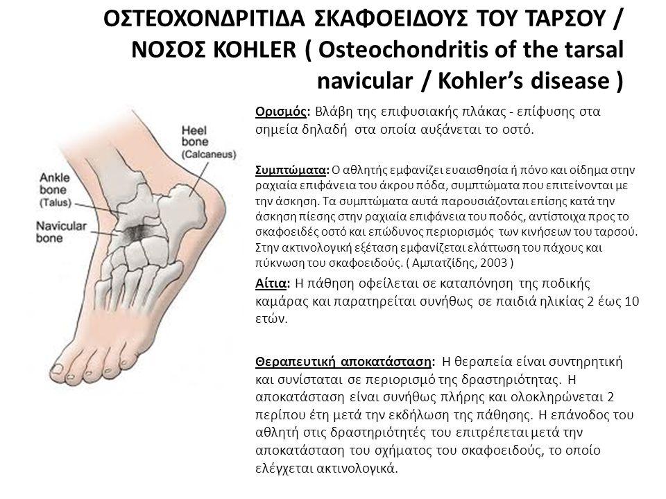 ΟΣΤΕΟΧΟΝΔΡΙΤΙΔΑ ΣΚΑΦΟΕΙΔΟΥΣ ΤΟΥ ΤΑΡΣΟΥ / ΝΟΣΟΣ KOHLER ( Osteochondritis of the tarsal navicular / Kohler's disease ) • Ορισμός: Βλάβη της επιφυσιακής πλάκας - επίφυσης στα σημεία δηλαδή στα οποία αυξάνεται το οστό.