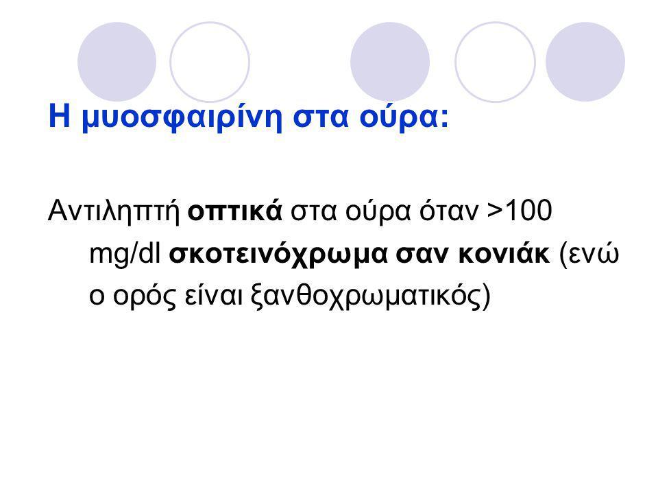 Η μυοσφαιρίνη στα ούρα: Αντιληπτή οπτικά στα ούρα όταν >100 mg/dl σκοτεινόχρωμα σαν κονιάκ (ενώ ο ορός είναι ξανθοχρωματικός)