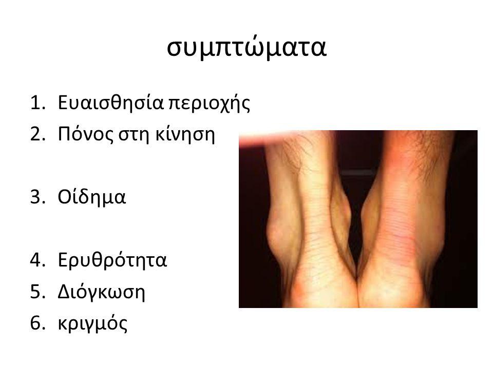 συμπτώματα 1.Ευαισθησία περιοχής 2.Πόνος στη κίνηση 3.Οίδημα 4.Ερυθρότητα 5.Διόγκωση 6.κριγμός