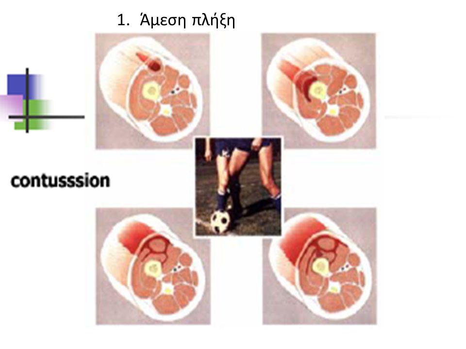 συμπτώματα • Πρόσθιος πόνος στο γόνατο • Συχνά μη καλά εντοπισμένος • Εμφάνιση σε χρήση σκαλοπατιών • Μετά από προπόνηση που απαιτούσε μεγάλη κάμψη-έκταση γόνατος • Σπανιότερα οίδημα, αίσθημα κριγμού