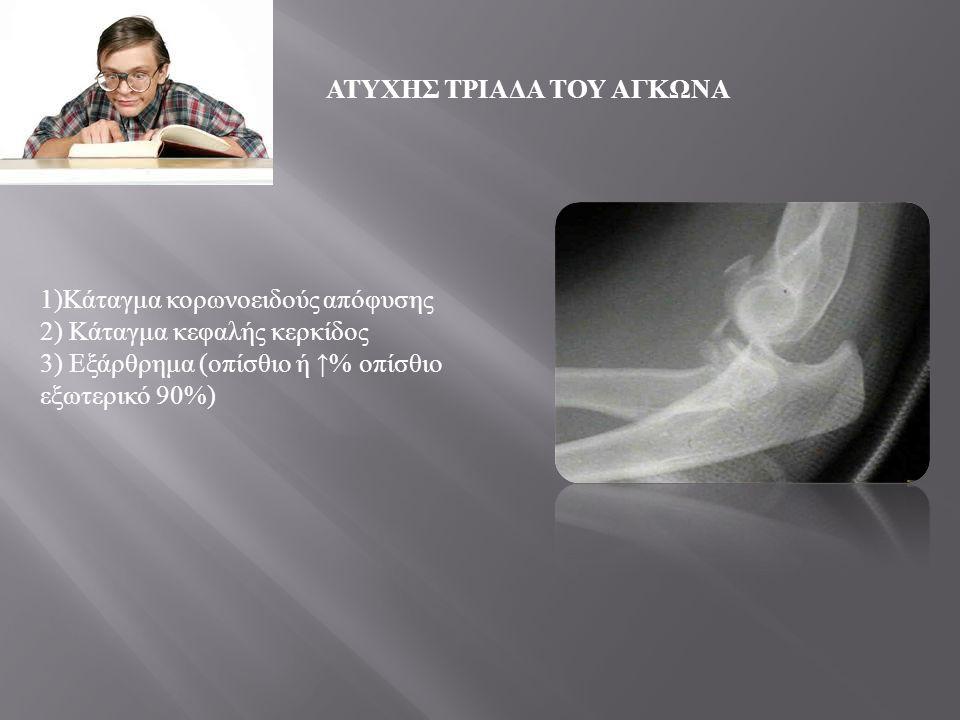 ΜΗΧΑΝΙΣΜΟΣ : •Τραυματική δύναμη ραιβότητας, οδηγεί σε οπίσθιο έξω εξάρθρημα και ρήξη του έξω πλαγίου συνδέσμου ( της ωλένιας μοίρας του έξω πλαγίου συνδέσμου ) •Συνήθως προκαλείται από πτώση πάνω στο χέρι που βρίσκεται σε υπερέκταση και πρηνισμό ΑΤΥΧΗΣ ΤΡΙΑΔΑ ΤΟΥ ΑΓΚΩΝΑ