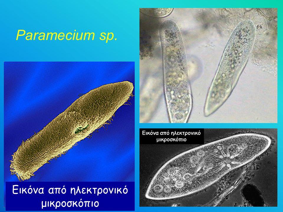 Paramecium sp. Εικόνα από ηλεκτρονικό μικροσκόπιο