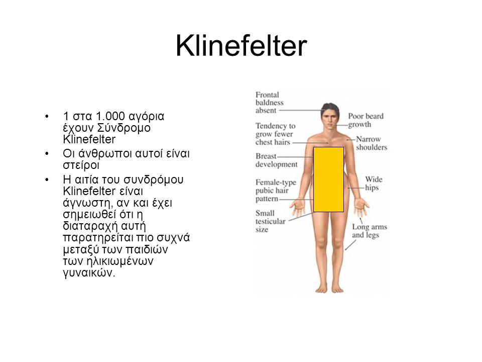 Klinefelter •1 στα 1.000 αγόρια έχουν Σύνδρομο Klinefelter •Οι άνθρωποι αυτοί είναι στείροι •Η αιτία του συνδρόμου Klinefelter είναι άγνωστη, αν και έχει σημειωθεί ότι η διαταραχή αυτή παρατηρείται πιο συχνά μεταξύ των παιδιών των ηλικιωμένων γυναικών.
