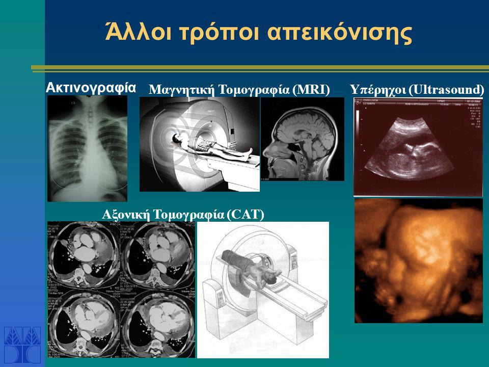Άλλοι τρόποι απεικόνισης Ακτινογραφία Μαγνητική Τομογραφία (MRI)Υπέρηχοι (Ultrasound) Αξονική Τομογραφία (CAT)