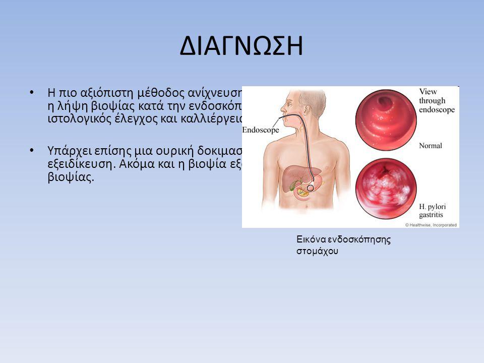 ΔΙΑΓΝΩΣΗ • Η πιο αξιόπιστη μέθοδος ανίχνευσης ελικοβακτηρίου του πυλωρού είναι η λήψη βιοψίας κατά την ενδοσκόπηση με ταχεία δοκιμασία ουρεάσης, ιστολογικός έλεγχος και καλλιέργεια μικροβίου.