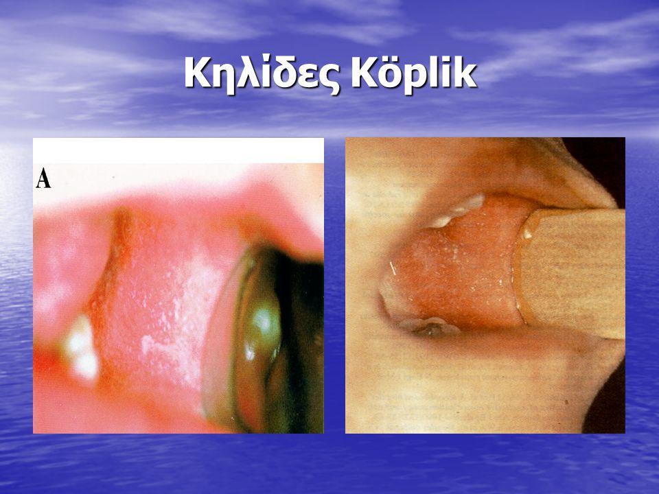 Κηλίδες Köplik