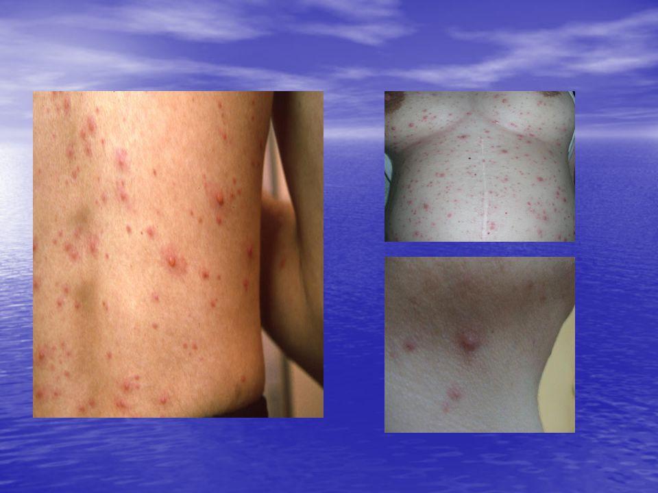 Κλινική εικόνα • Τα πρώτα συμπτώματα είναι υψηλός πυρετός, υπεραιμία της μύτης και των ματιών, δακρύρροια, φωτοφοβία, ρινόρροια και κοπιαστικός βήχας (12- 24 ώρες).