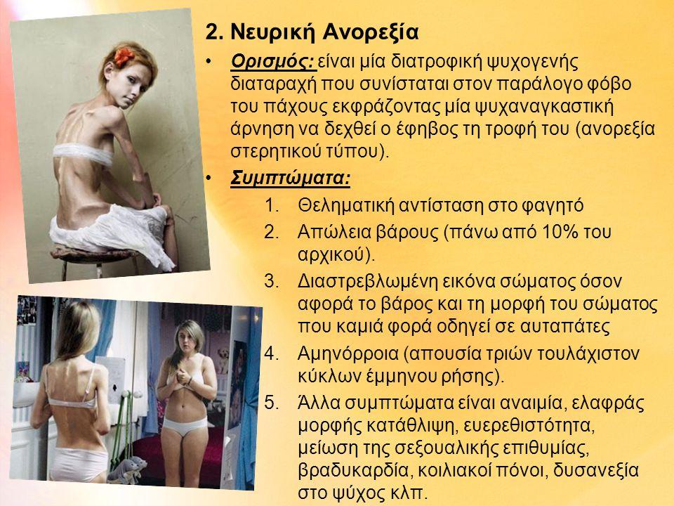 2. Νευρική Ανορεξία •Ορισμός: είναι μία διατροφική ψυχογενής διαταραχή που συνίσταται στον παράλογο φόβο του πάχους εκφράζοντας μία ψυχαναγκαστική άρν