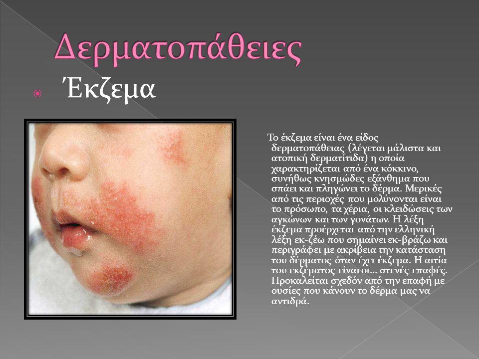 Έκζεμα Το έκζεμα είναι ένα είδος δερματοπάθειας (λέγεται μάλιστα και ατοπική δερματίτιδα) η οποία χαρακτηρίζεται από ένα κόκκινο, συνήθως κνησμώδες