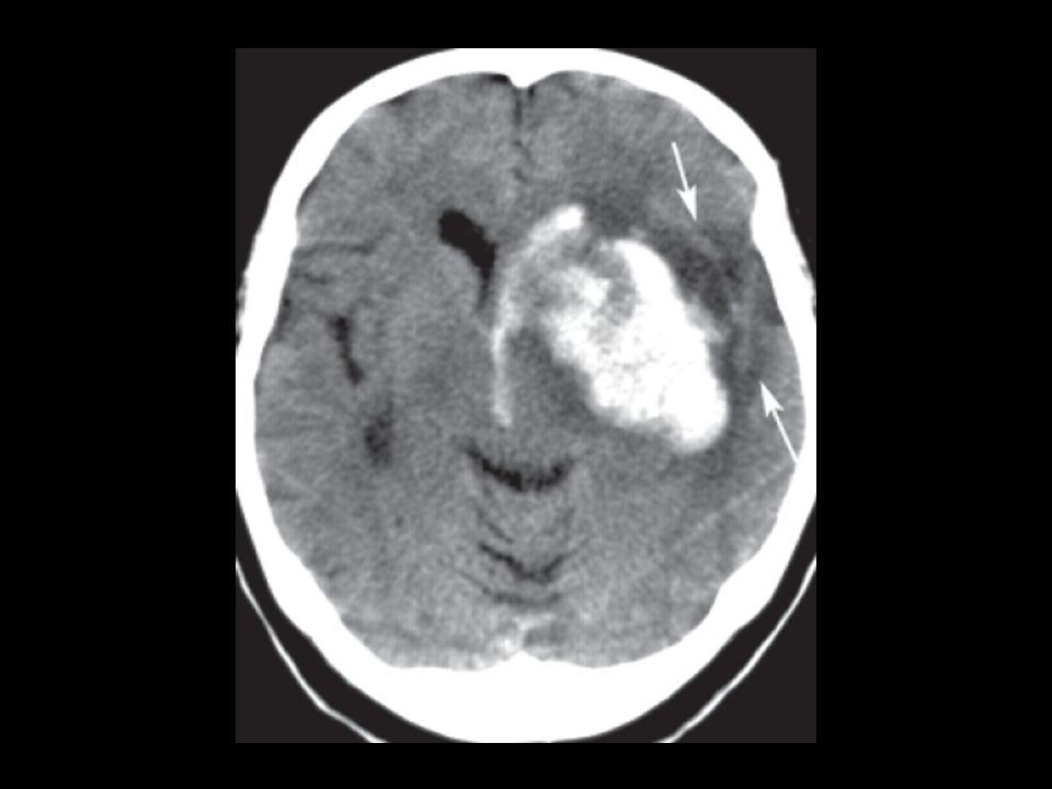 Lancet 1996; 348: 1329–39 CAPRIE: Clopidogrel vs. aspirin