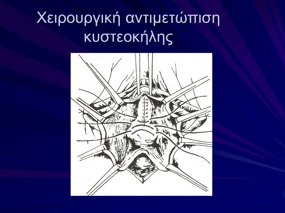 Χειρουργική αντιμετώπιση κυστεοκήλης