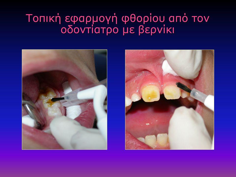 Τοπική εφαρμογή φθορίου από τον οδοντίατρο με βερνίκι