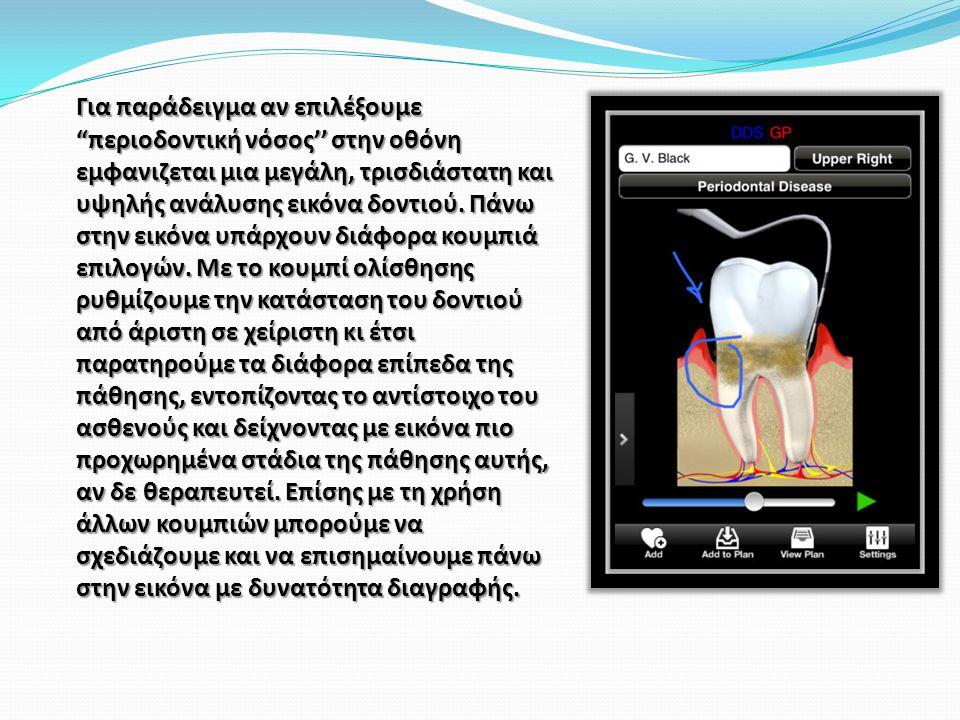 Για παράδειγμα αν επιλέξουμε περιοδοντική νόσος'' στην οθόνη εμφανιζεται μια μεγάλη, τρισδιάστατη και υψηλής ανάλυσης εικόνα δοντιού.