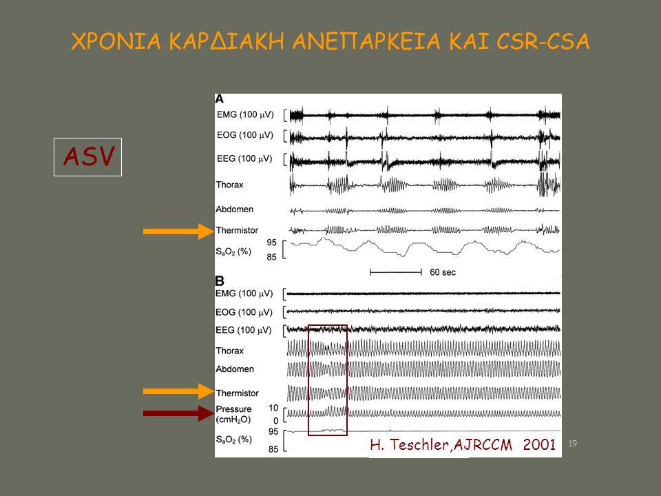 ΧΡΟΝΙΑ ΚΑΡΔΙΑΚΗ ΑΝΕΠΑΡΚΕΙΑ ΚΑΙ CSR-CSA ASV H. Teschler,AJRCCM 2001 19