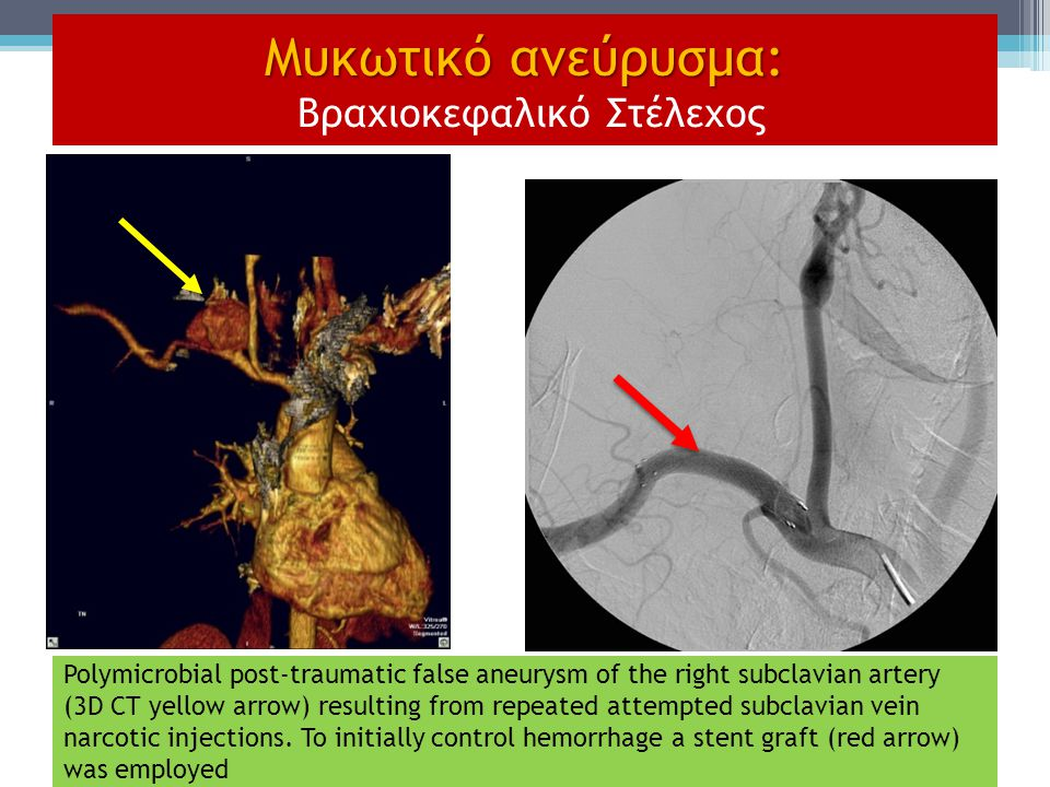 Polymicrobial post-traumatic false aneurysm of the right subclavian artery (3D CT yellow arrow) resulting from repeated attempted subclavian vein narc
