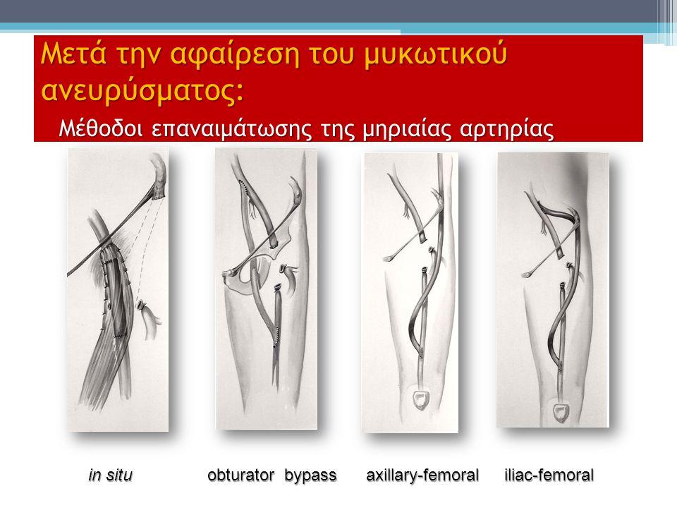 Μετά την αφαίρεση του μυκωτικού ανευρύσματος: Μέθοδοι επαναιμάτωσης της μηριαίας αρτηρίας in situ obturator bypass axillary-femoral iliac-femoral in s