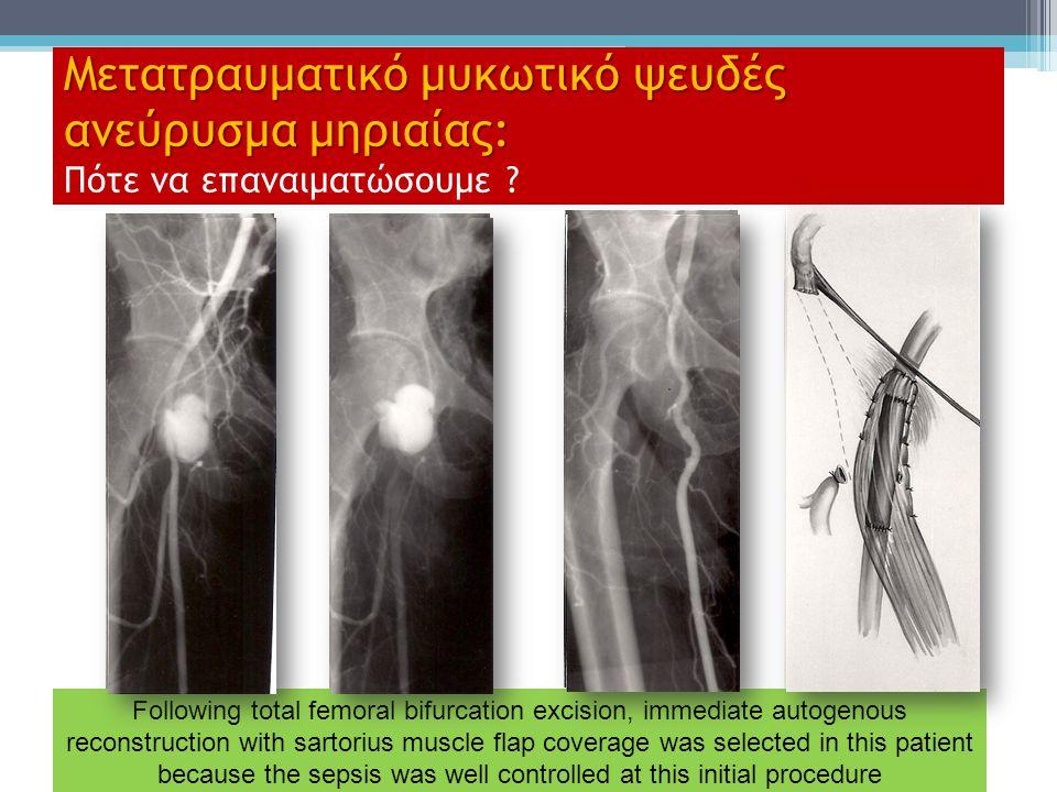 Μετατραυματικό μυκωτικό ψευδές ανεύρυσμα μηριαίας: Μετατραυματικό μυκωτικό ψευδές ανεύρυσμα μηριαίας: Πότε να επαναιματώσουμε ? Following total femora
